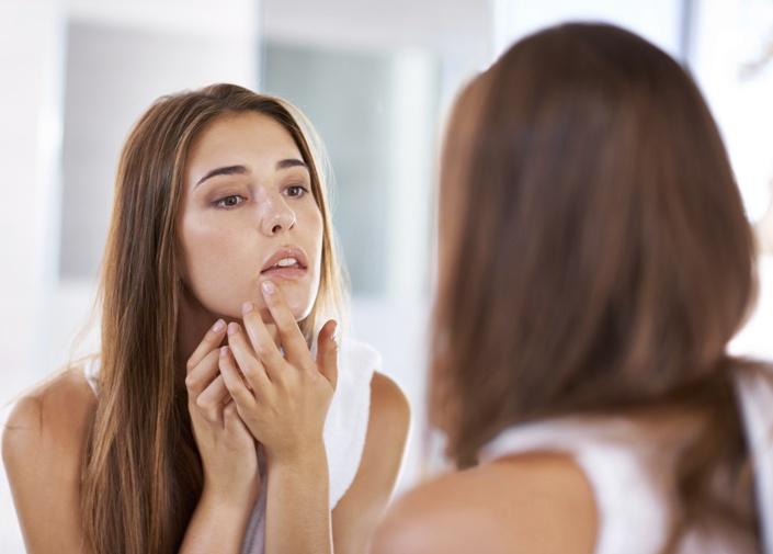 acne fungicida